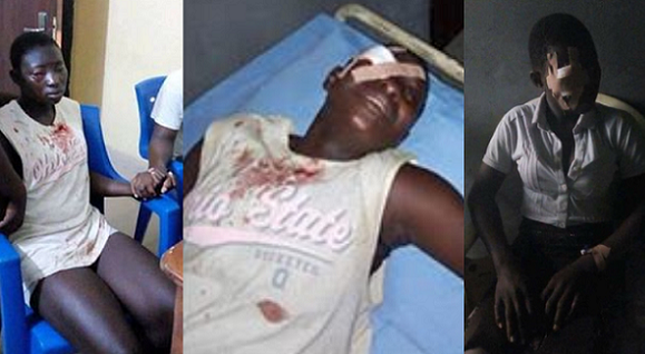 PHOTOS: SS1 FEMALE STUDENT STABS CLASSMATE IN THE EYE FOR REFUSING TO JOIN CULT