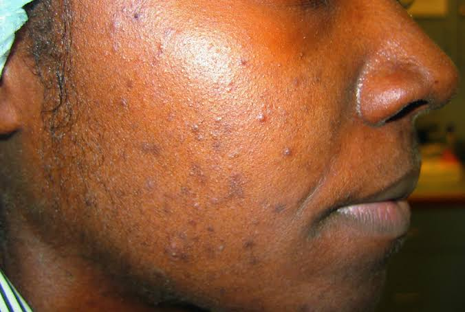 10 Most Common Misconceptions About Acne (Pimples)