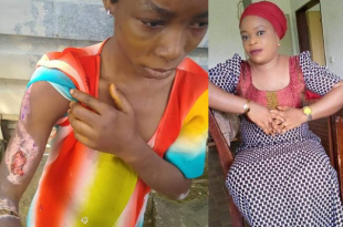Woman arrested for scalding her niece with hot water