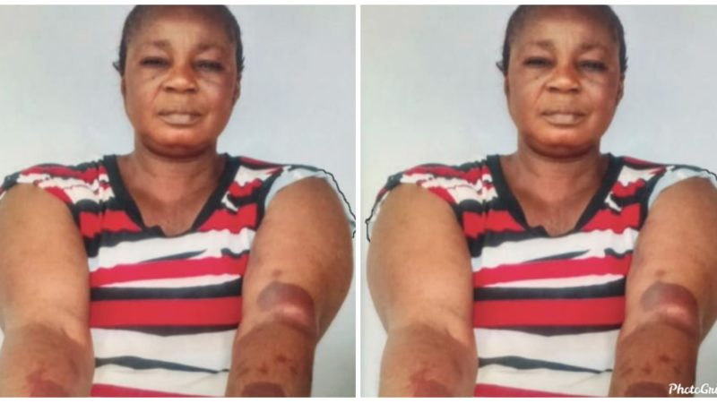 Shocking story of a woman who was beaten to a pulp by Landlord for refusing his love advances