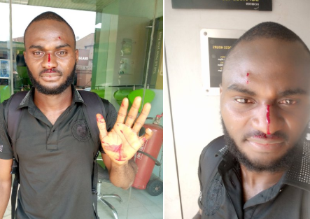 Nigerian man accuses a police officer of assaulting him and his brother after falsely accusing them of being armed robbers