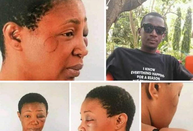 Deadbeat' father allegedly batters his estranged wife over custody of their kids (photos)