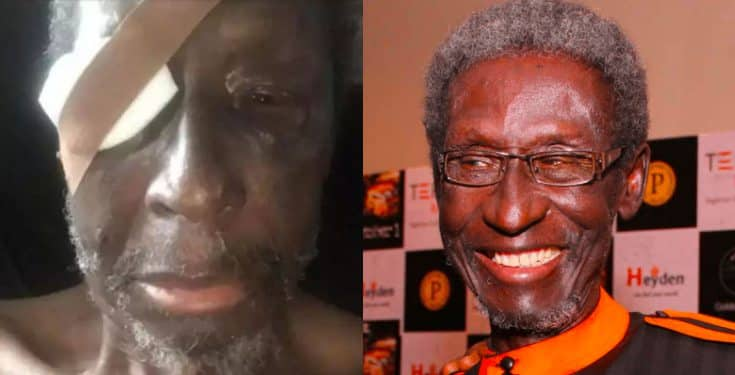 """Sadiq Daba is """"on the verge of losing one of his eyes"""" as his health worsens' – Journalist claims"""